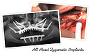 All About Zygomatic Implants – Dr. Carlos Aparicio